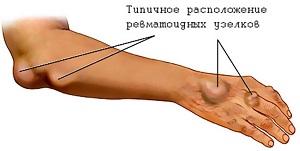 Острая ревматическая лихорадка: что это за заболевание и какую несет опасность