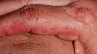 дерматомиозит