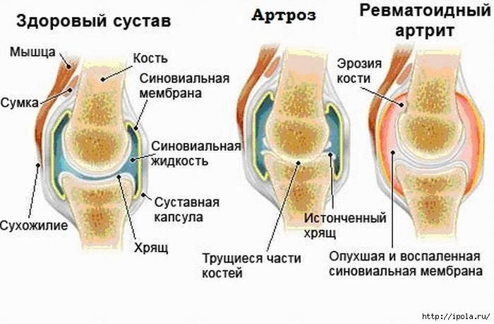 артрози артрит