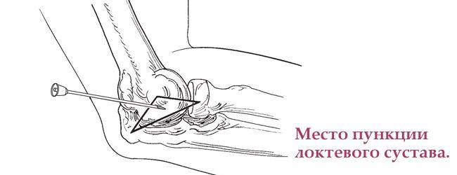 артроцентез локтевого сустава