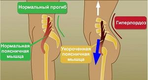 патология лордоза позвоночника