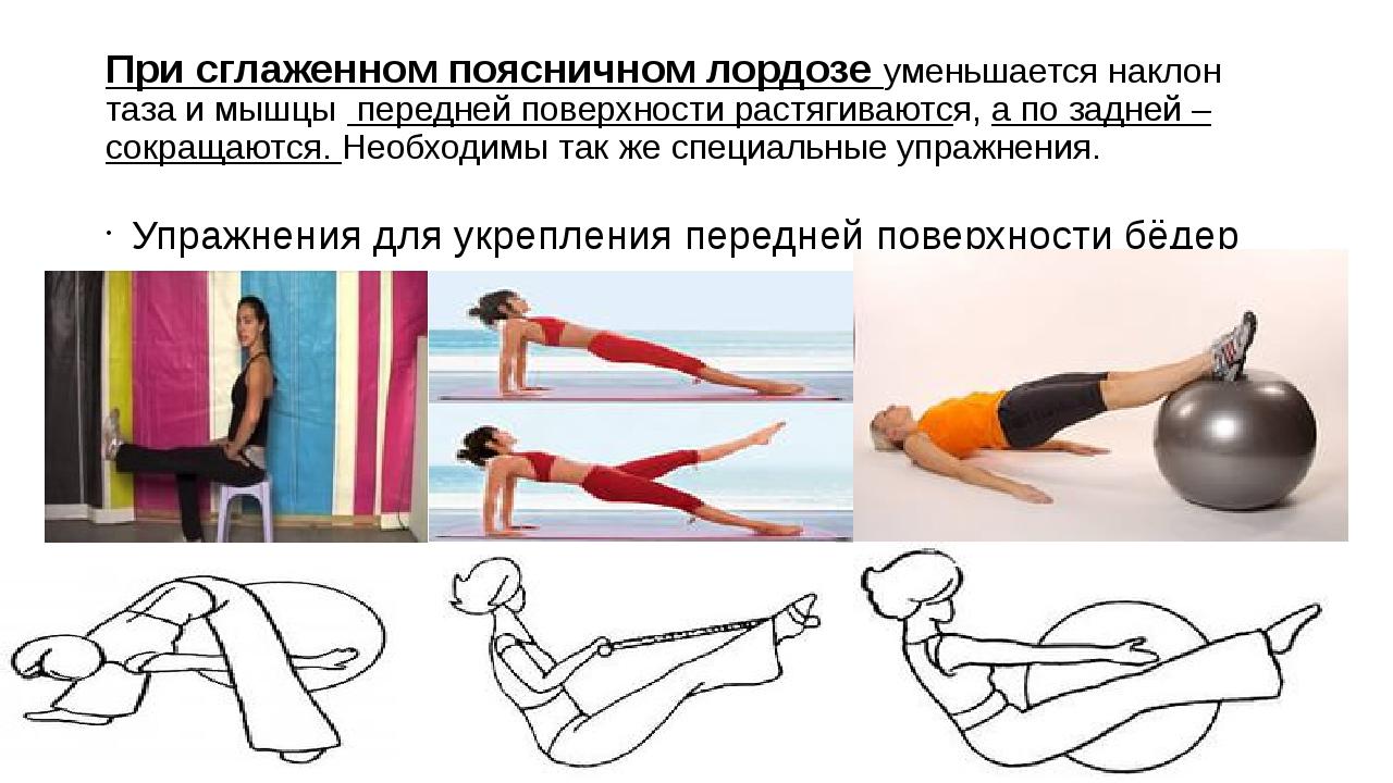 упражнения при гиперлордозе
