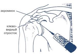 артроцентез плечевого сустава