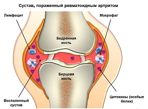 сустав при ревматоидном артрите